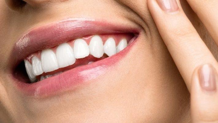 geschiedenis tanden bleken